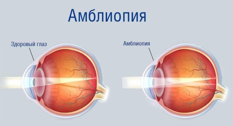 Амблиопия (синдром ленивого глаза): классификация и лечение