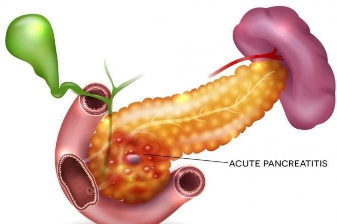 Воспаление поджелудочной железы симптомы лечение у ребенка