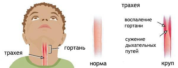 Ларингоспазм у детей – причины, симптомы, как оказать экстренную помощь ребенку