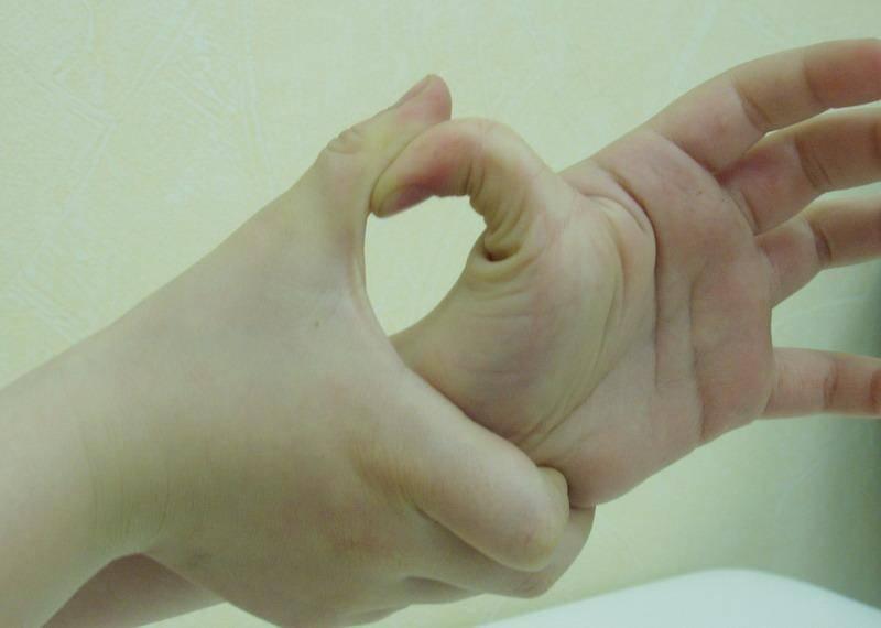 Дисплазия соединительной ткани у детей: проявления и подходы к лечению