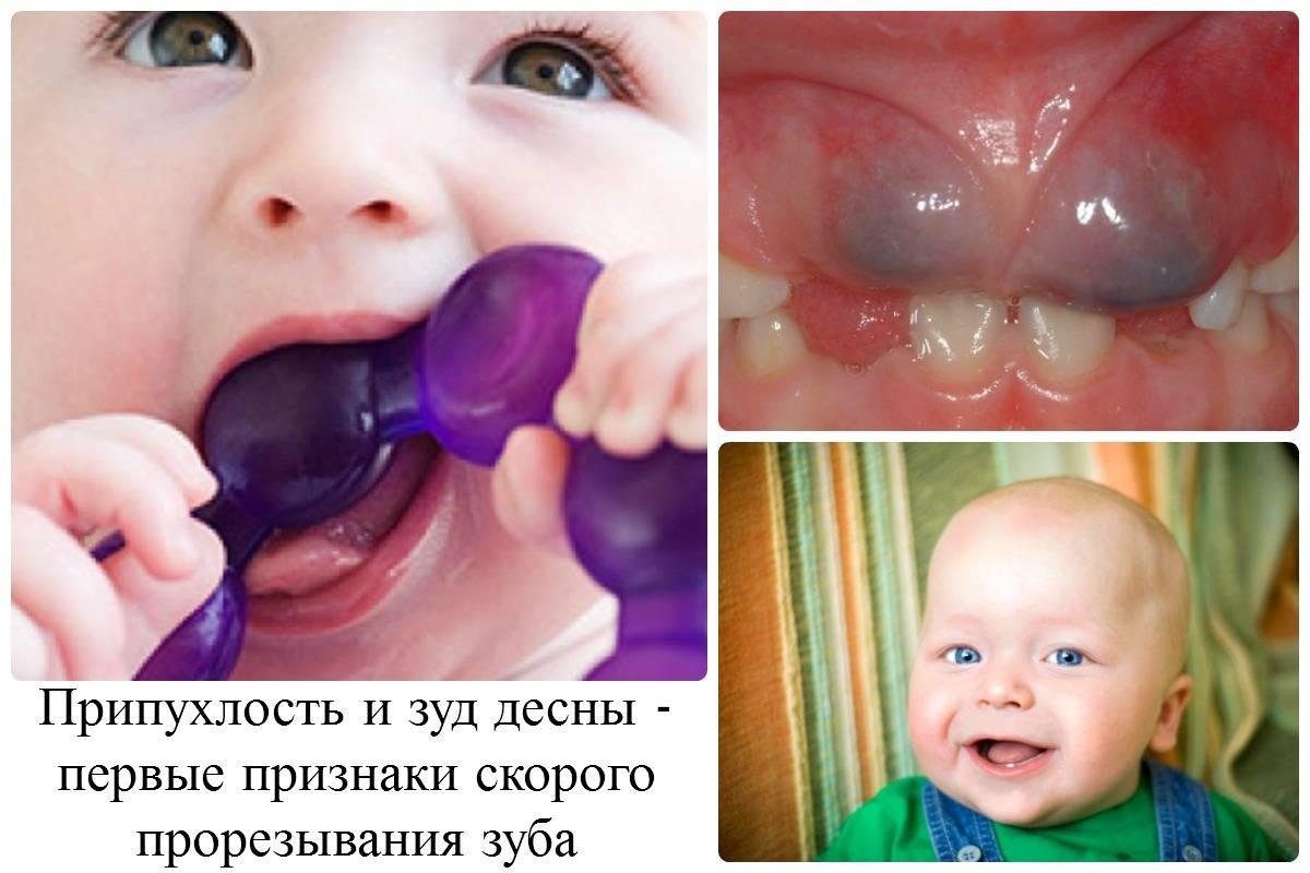 Кашель и сопли при прорезывании зубов, советы комаровского