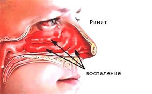 Как снять сильный отек носа у ребенка лечение слизистой оболочки носоглотки