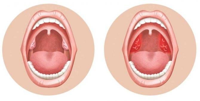 Рыхлое горло у ребенка как лечить | стоп.простуда!
