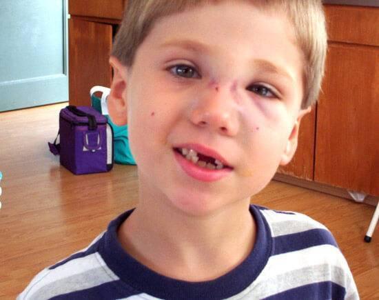 Перелом носа у ребенка: симптомы и признаки с фото, способы определения травмы