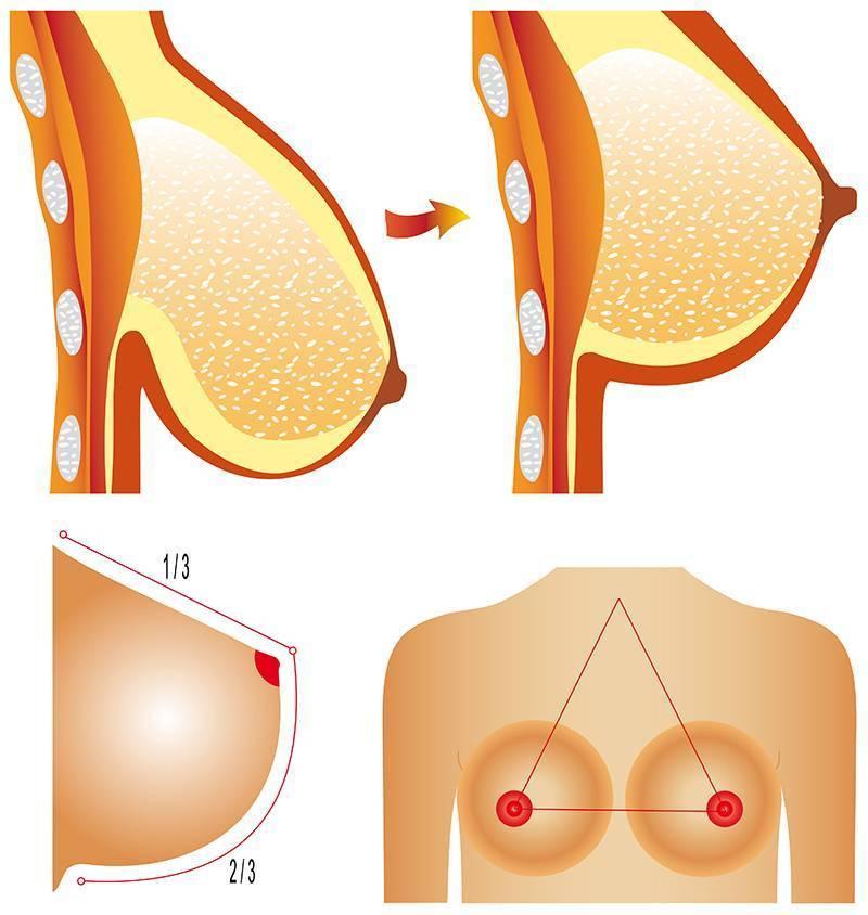 Что делать, если обвисла грудь после родов