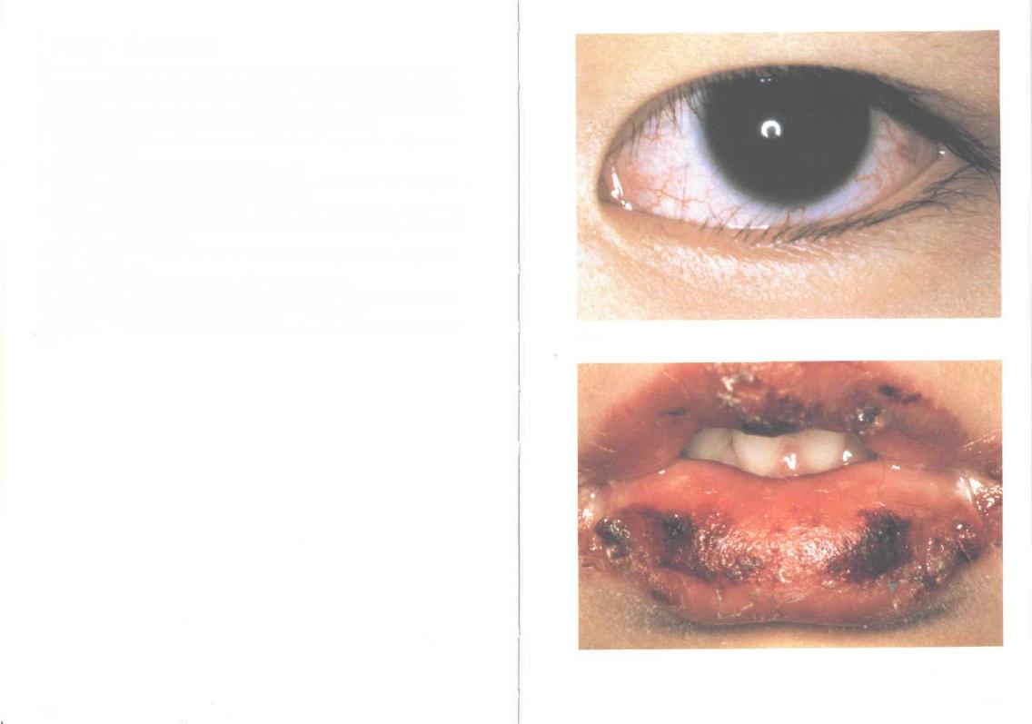 Болезнь кавасаки у детей (18 фото): симптомы синдрома, причины и лечение