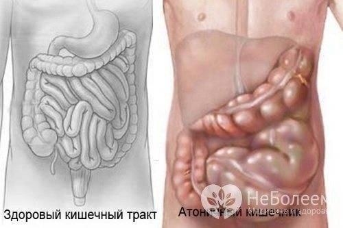 Долихосигма кишечника у детей: виды, причины возникновения, симптомы, диагностика и лечение
