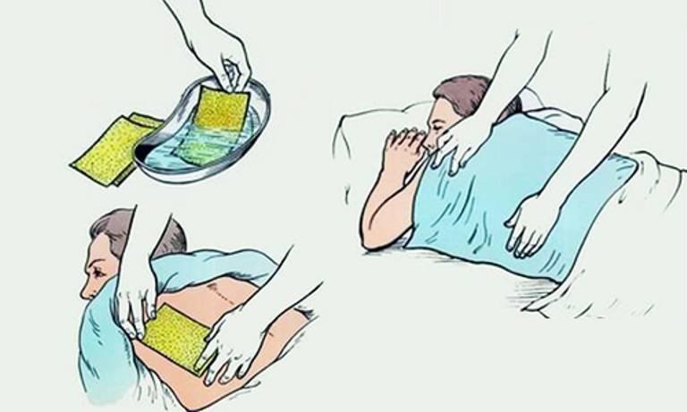 Как ставить горчичники при кашле? инструкция. детям и взрослым