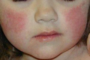 Шершавое пятно на коже у ребенка: разновидности и причины появления образований, их характеристики и особенности, методы лечения и профилактики, рекомендации родителям