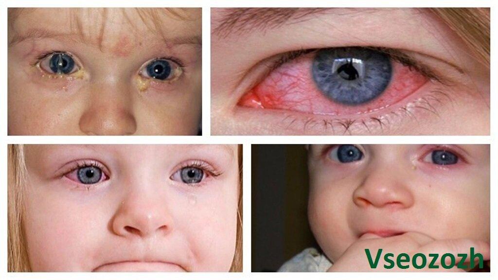 У ребенка слезятся глаза: возможные причины и лечение
