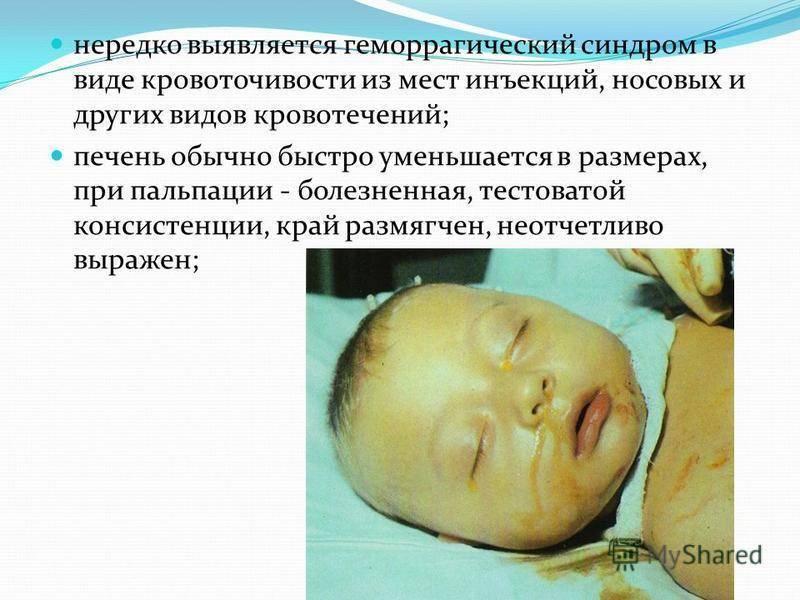 Геморрагическая болезнь новорожденного: причины и симптомы, поздняя форма, лечение