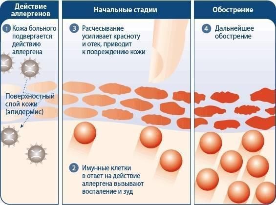 Вирусный дерматит: причины, симптомы, фото, лечение и профилактика
