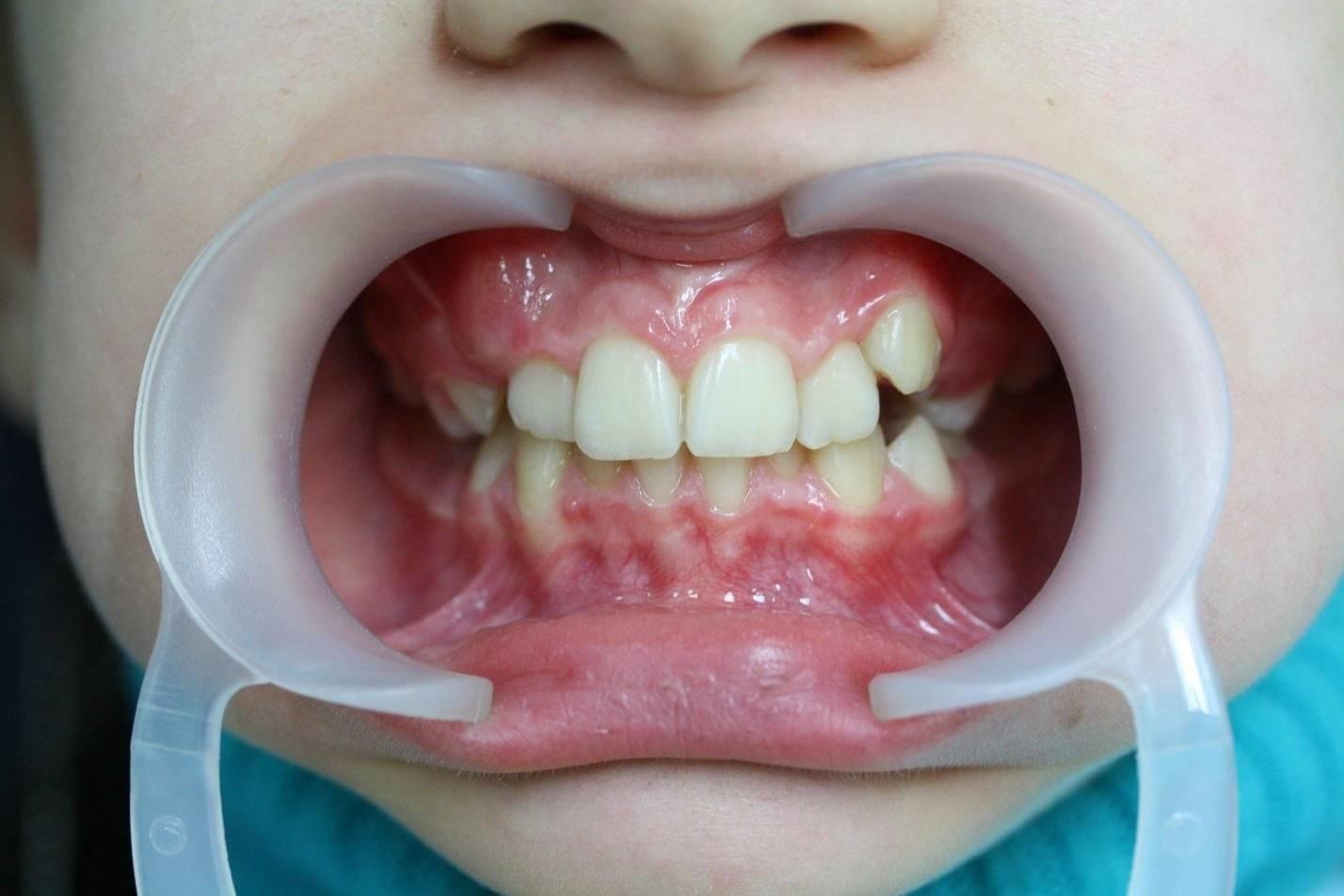 Флюс у ребенка на зубе или щеке - причины, симптомы, лечение. что можно сделать в домашних условиях