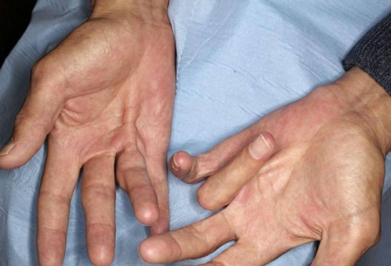 Болезнь нотта — симптомы и лечение
