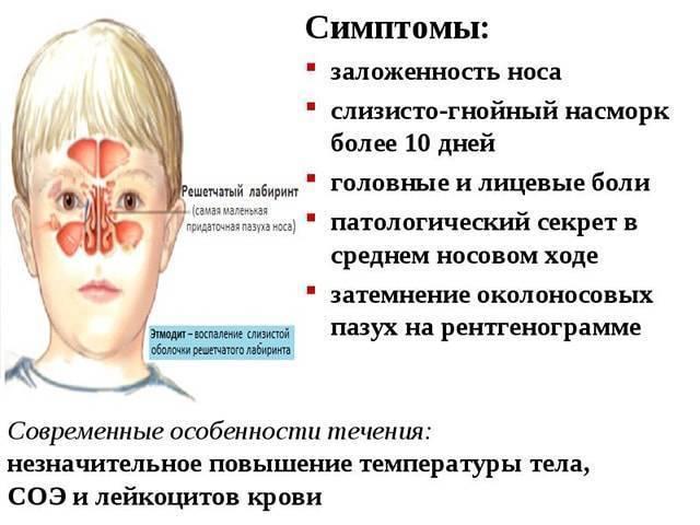 Хронический аденоидит у детей: симптомы, лечение, профилактика