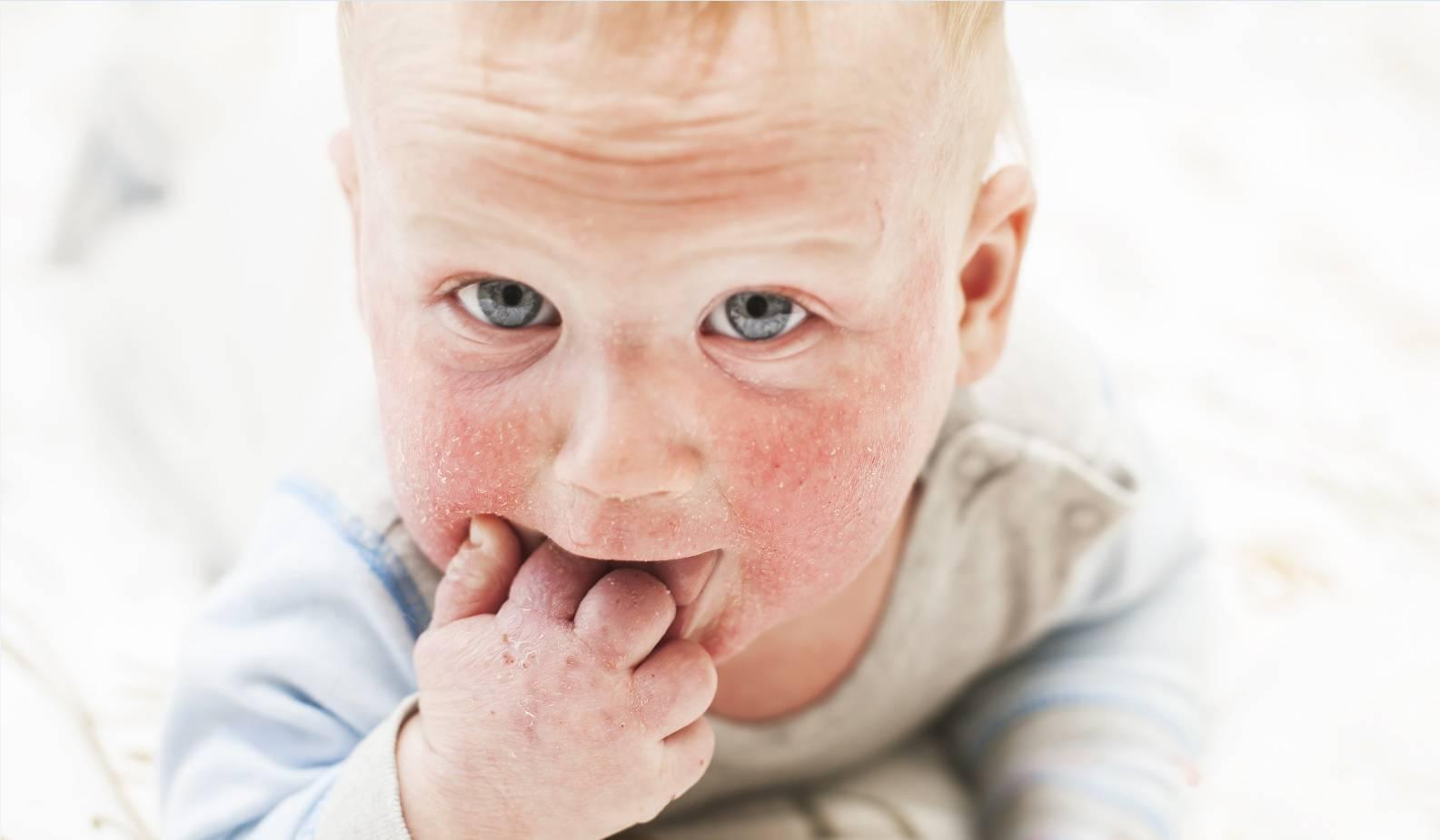 Симптомы инфекционного (вирусного) дерматита у детей, лечение и методы профилактики