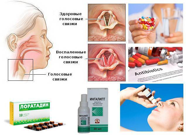 Как снять отек горла у ребенка, первая помощь, симптомы и лечение