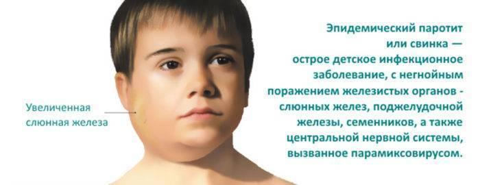 Паротит у детей признаки, симптомы и лечение
