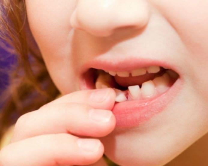 Процедура удаления молочных зубов у детей