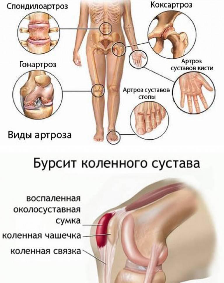 Если у ребенка болят колени: причины, чем это опасно и что делать | все о суставах и связках