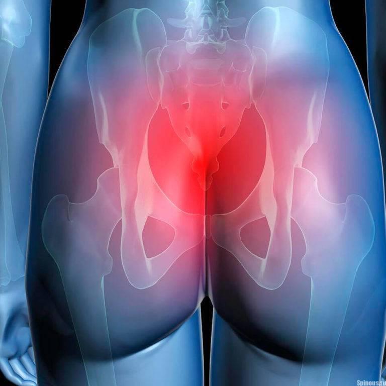 Почему болит поясница и копчик перед месячными - заметки врача