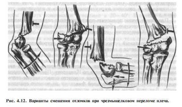 Переломы плечевой кости у детей: чрезмыщелковые и межмыщелковые, открытые и закрытые, со смещением и без