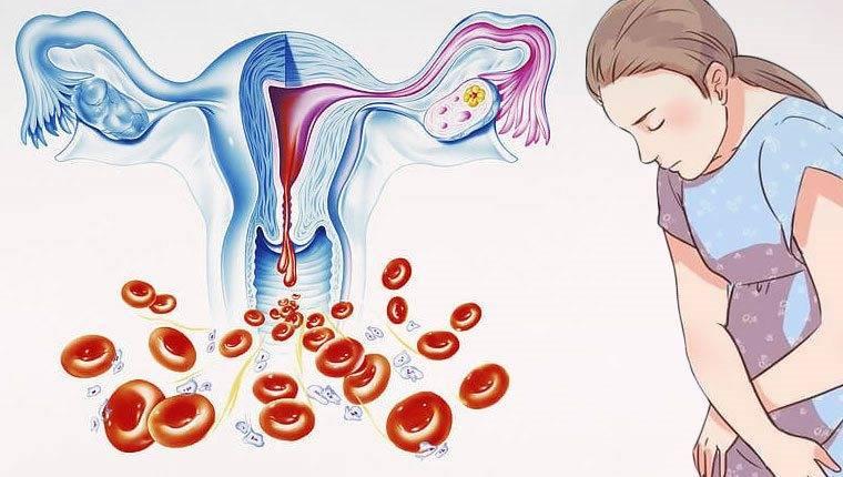 Почему нет месячных от приёма норколута - вопрос гинекологу - 03 онлайн