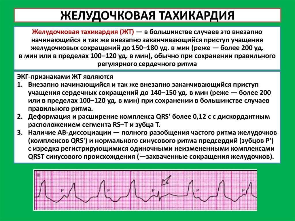 Синусовая тахикардия: причины возникновения, симптомы и признаки, как и когда лечить