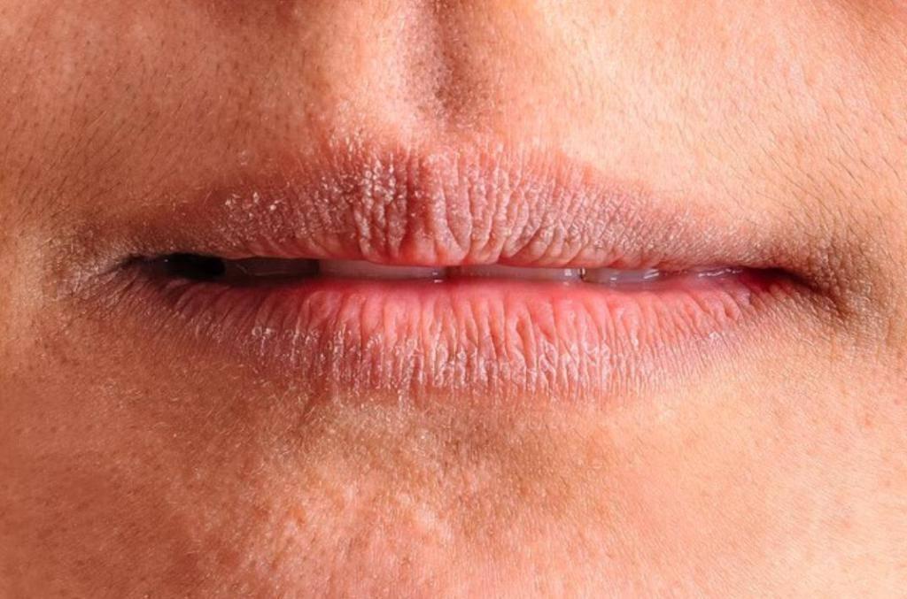 Ангулит в уголках рта у детей