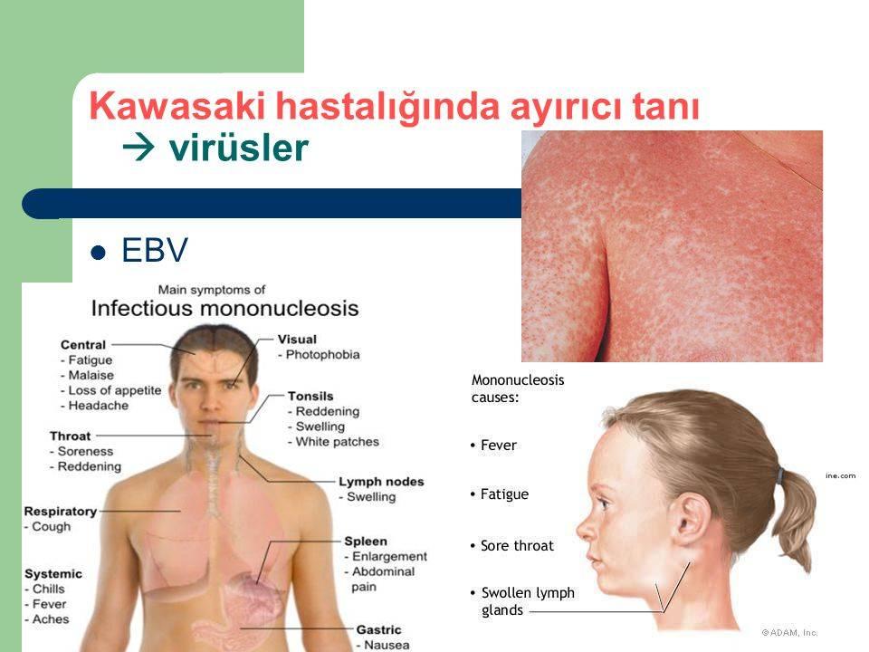 Синдром кавасаки у детей и covid-19: критерии, патогенез, видео, фото
