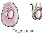 Водянка яичек у мальчиков: причины, симптомы, методы лечения