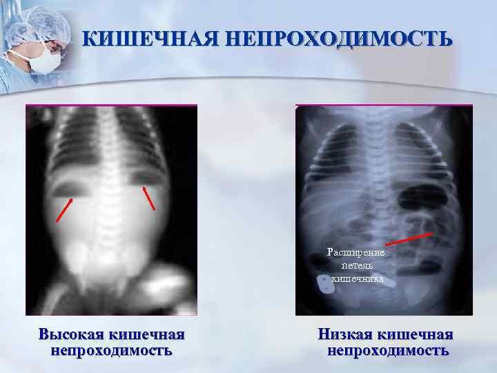 Кишечная непроходимость у детей: симптомы у новорожденного, грудничка до года и ребенка постарше