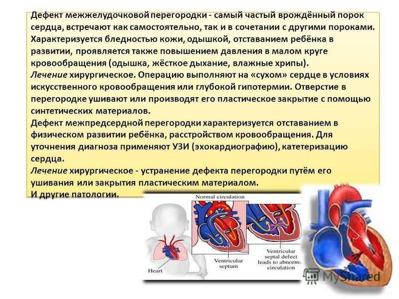 Врожденный порок сердца – дефект межжелудочковой перегородки сердца у новорожденного: что это такое, симптомы, диагностика, методы лечения