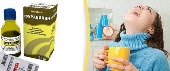 Как быстро вылечить горло в домашних условиях за 1 день. содо солевой раствор для полоскания