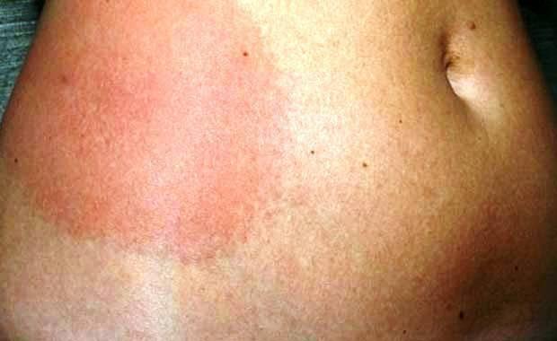 Сыпь на теле у ребенка без покраснения и зуда