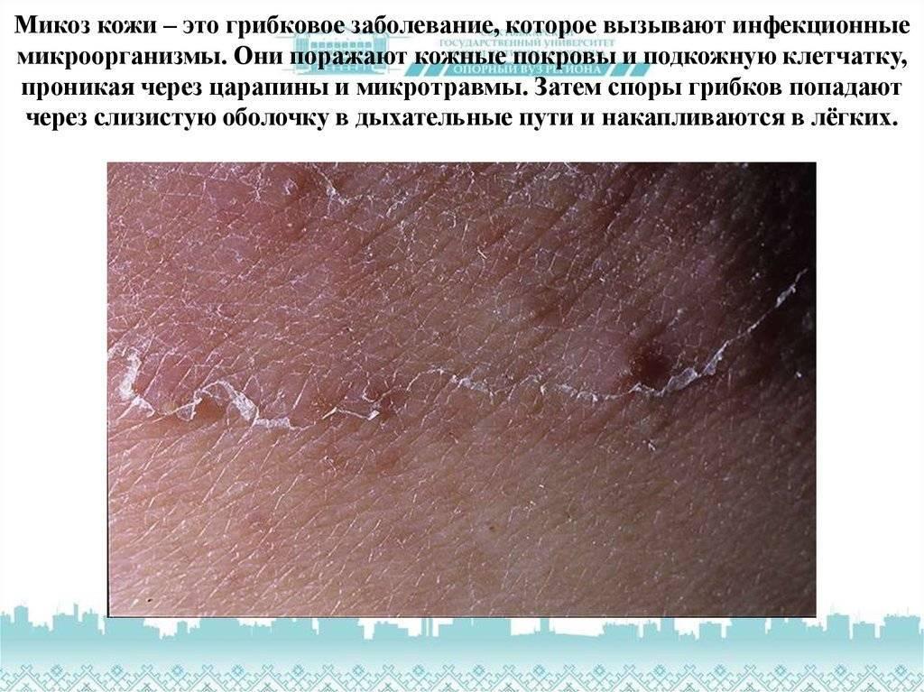 Грибовидный микоз кожи: симптомы и методы лечения