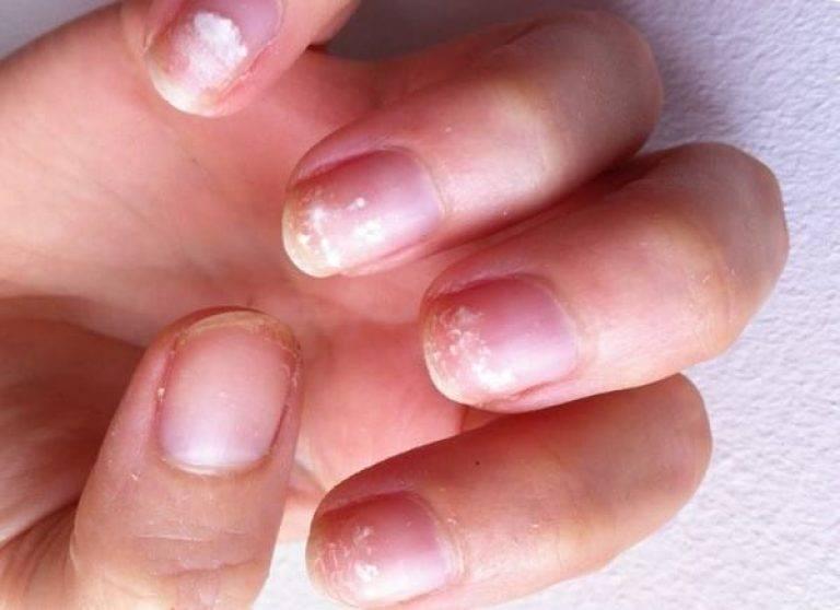 У ребенка слоятся ногти на руках и ногах: почему и что делать (причины)?