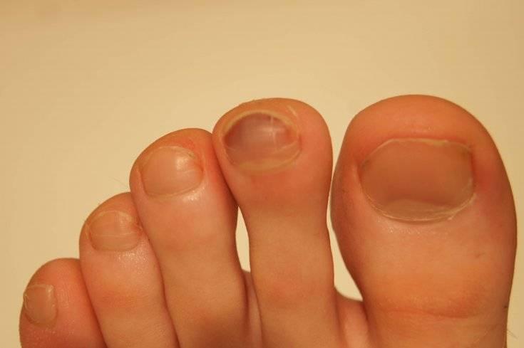 Слоятся ногти у ребенка на руках и ногах
