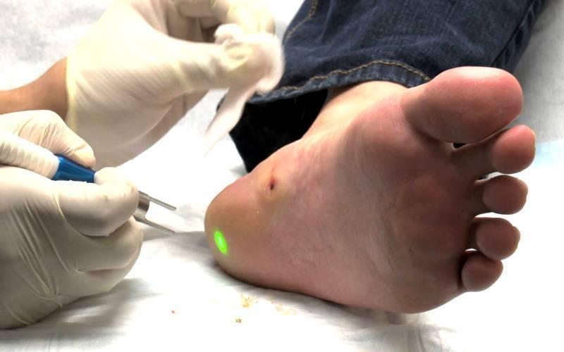 4 причины бородавок на ногах — средства и мази для лечения