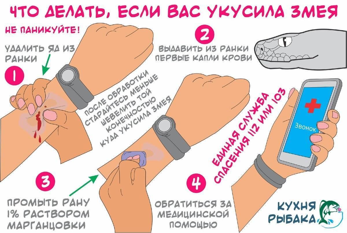 Что делать после укуса ядовитой змеи: советы специалистов // нтв.ru