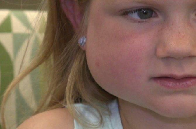 У ребенка опухла щека: ???? все о беременности и детях