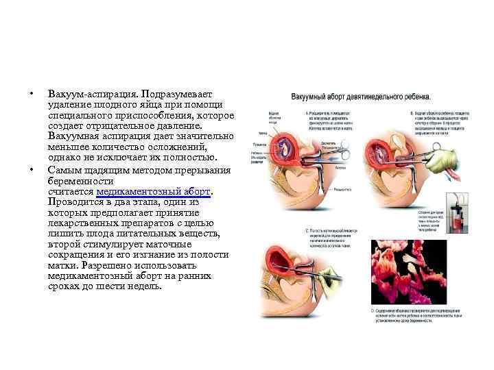 Вакуумный аборт, последствия