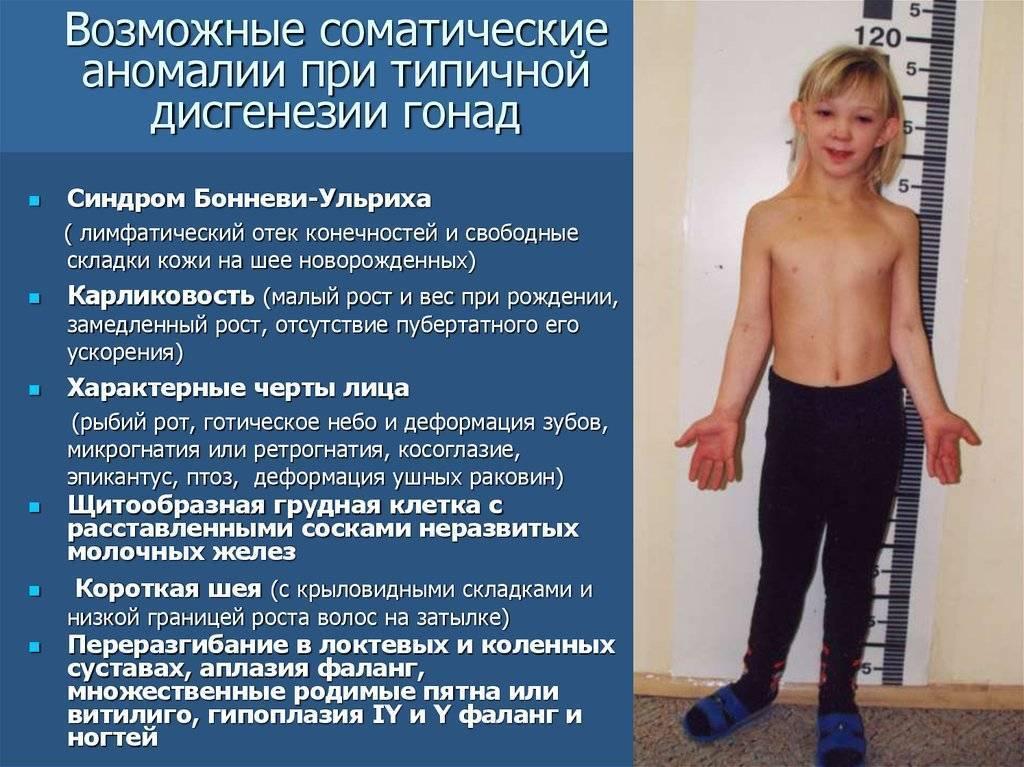Задержка полового созревания, описание заболевания на портале medihost.ru