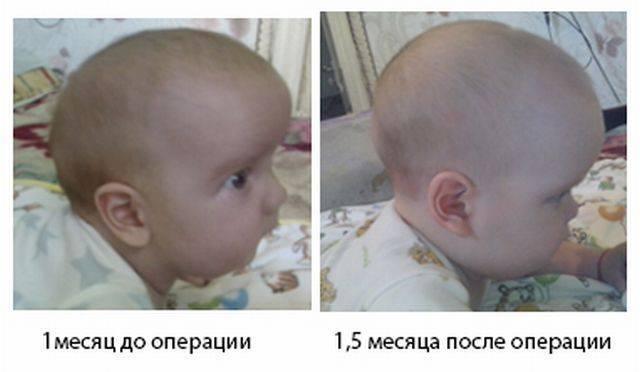 Чем грудничку грозит маленький родничок? стоит ли паниковать родителям? причины и последствия этой физиологической особенности малыша.