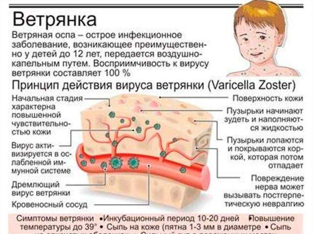 Чесотка у детей — симптомы и лечение