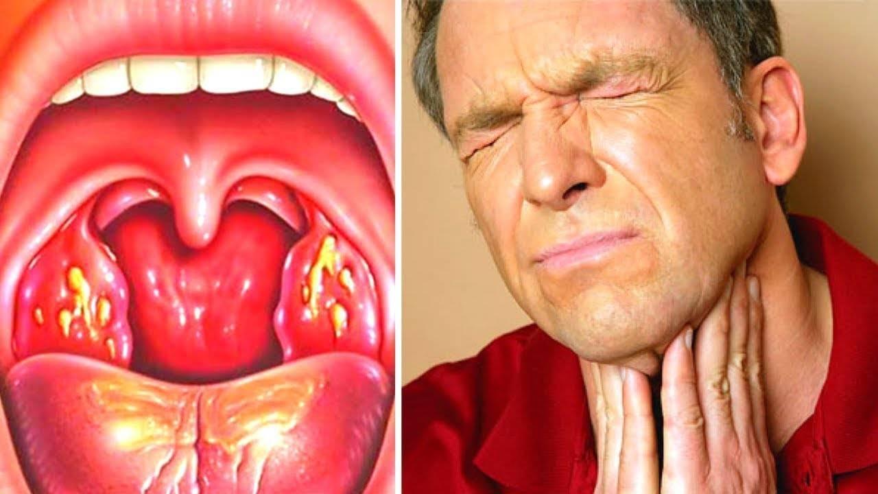 Доктор комаровский о том, чем лечить красное горло у ребенка