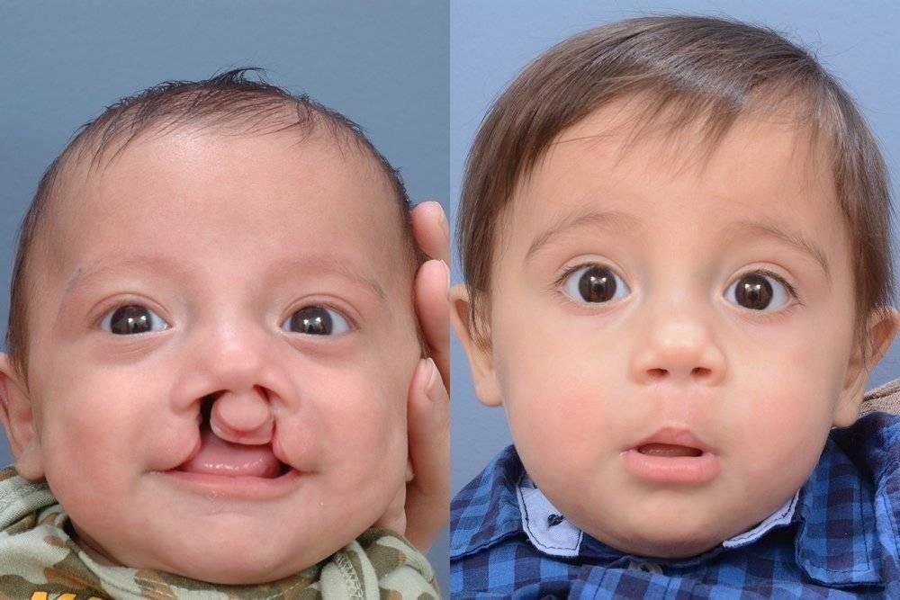 Волчья пасть у детей и заячья губа: причины патологий, фото до и после операции   заболевания   vpolozhenii.com