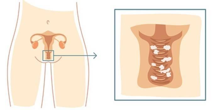 Первые признаки беременности до задержки - сайт о