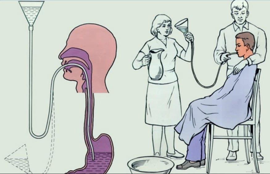 Чем остановить рвоту в домашних условиях - первая помощь: противорвотные лекарства и народные средства для предвращения тошноты