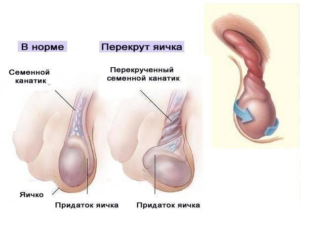 Перекрут гидатиды яичка у детей: симптомы, причины появления у мальчиков, последствия после операции   konstruktor-diety.ru